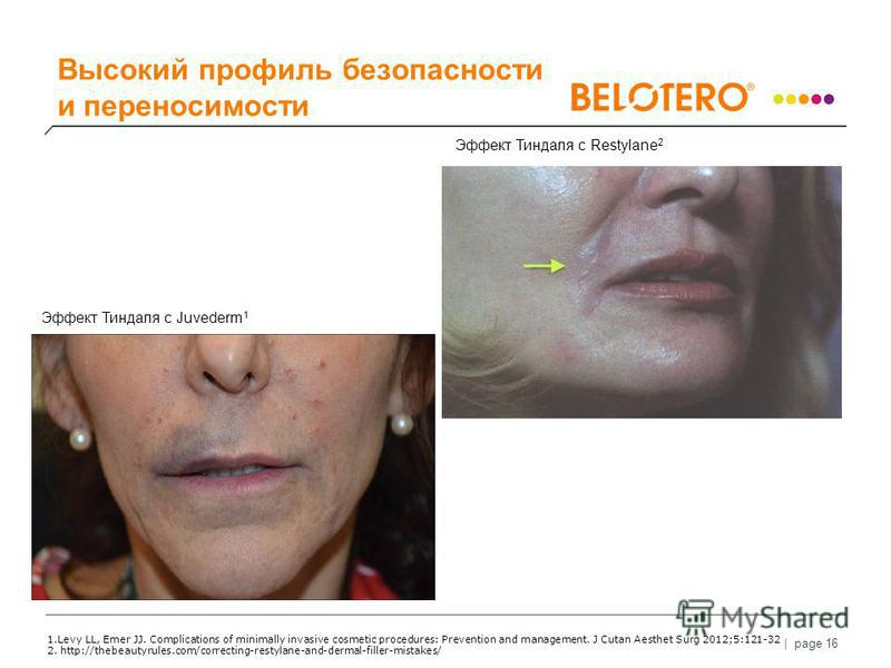 | page 16 Scattering α 1 λ 4 1. Levy LL, Emer JJ. Complications of minimally invasive cosmetic procedures: Prevention and management. J Cutan Aesthet Surg 2012;5:121-32 2. http://thebeautyrules.com/correcting-restylane-and-dermal-filler-mistakes/ Эфф