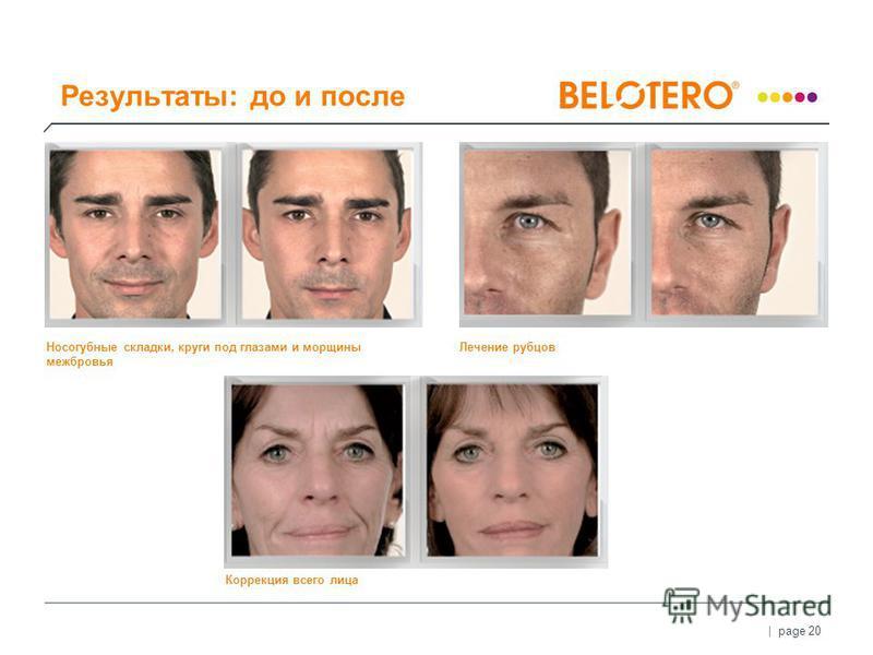 | page 20 Носогубные складки, круги под глазами и морщины межбровья Коррекция всего лица Лечение рубцов Результаты: до и после