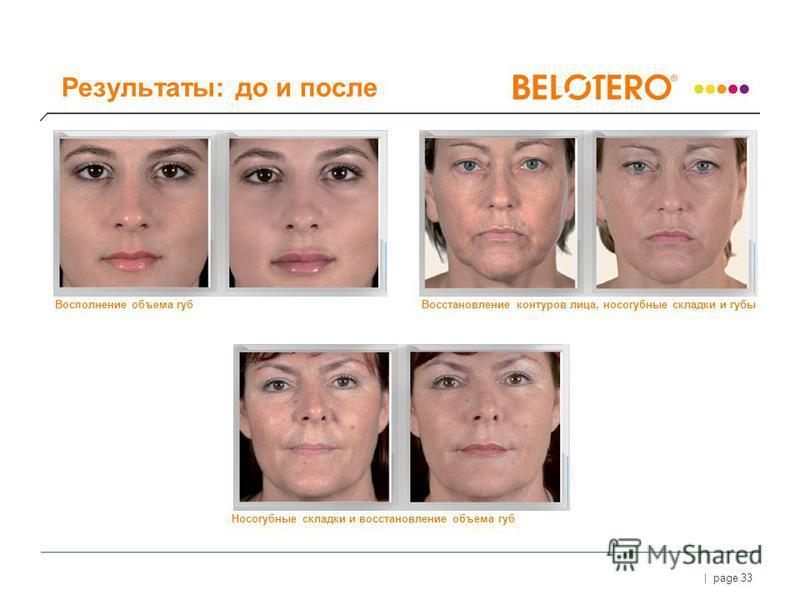 | page 33 Результаты: до и после Восполнение объема губ Носогубные складки и восстановление объема губ Восстановление контуров лица, носогубные складки и губы