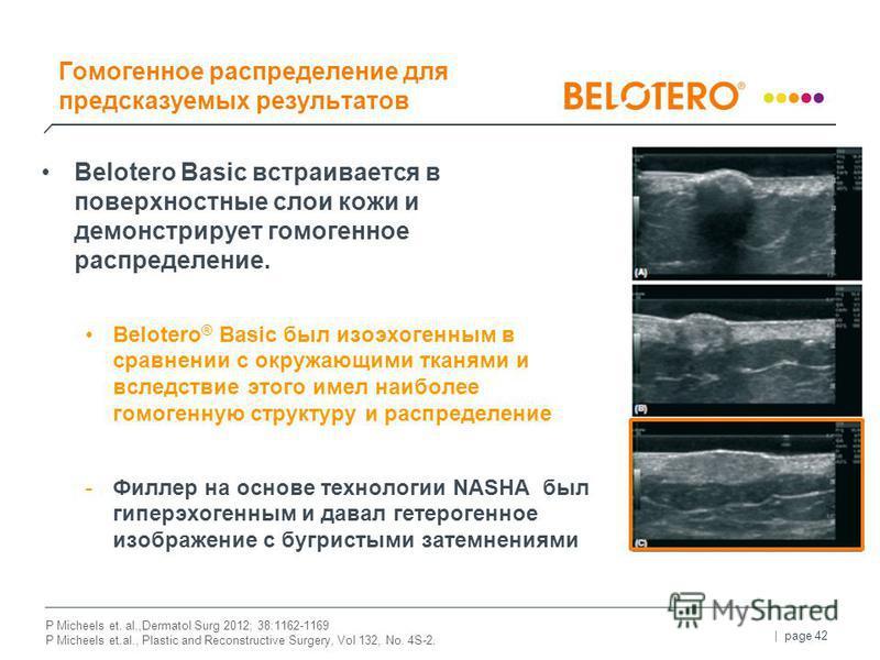| page 42 Belotero Basic встраивается в поверхностные слои кожи и демонстрирует гомогенное распределение. Belotero ® Basic был изоэхогенным в сравнении с окружающими тканями и вследствие этого имел наиболее гомогенную структуру и распределение -Филле