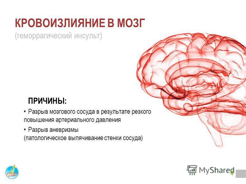 3 ВЫ НЕ ОДИНОКИ! В России заболеваемость составляет более 450 тысяч Инсультов в год! Инсульт острое нарушение мозгового кровообращения с развитием симптомов поражения центральной нервной системы. Виды Инсульта: Кровоизлияние в мозг (геморрагический и