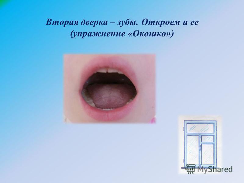 Вторая дверка – зубы. Откроем и ее (упражнение «Окошко»)