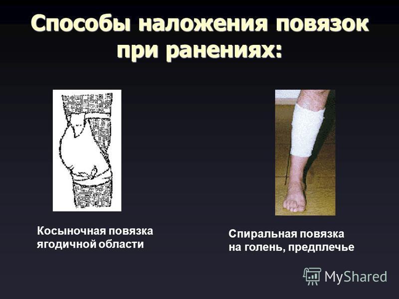 Способы наложения повязок при ранениях: Косыночная повязка ягодичной области Спиральная повязка на голень, предплечье