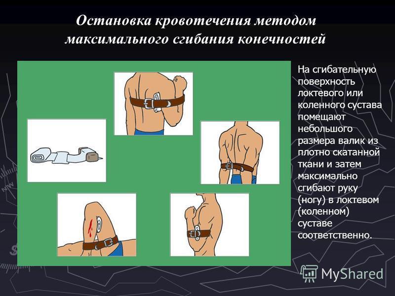 Остановка кровотечения методом максимального сгибания конечностей На сгибательную поверхность локтевого или коленного сустава помещают небольшого размера валик из плотно скатанной ткани и затем максимально сгибают руку (ногу) в локтевом (коленном) су