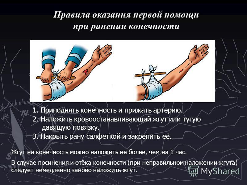 Правила оказания первой помощи при ранении конечности 1. Приподнять конечность и прижать артерию. 2. Наложить кровоостанавливающий жгут или тугую давящую повязку. 3. Накрыть рану салфеткой и закрепить её. Жгут на конечность можно наложить не более, ч