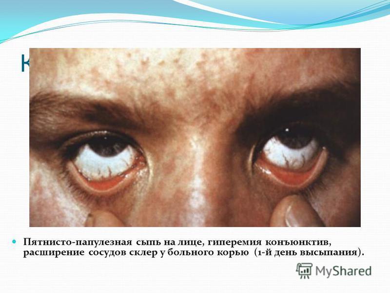 Клиническая картина. Пятнисто-папулезная сыпь на лице, гиперемия конъюнктив, расширение сосудов склер у больного корью (1-й день высыпания).