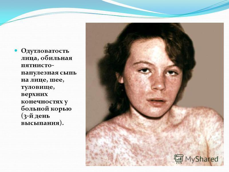 Одутловатость лица, обильная пятнисто- папулезная сыпь на лице, шее, туловище, верхних конечностях у больной корью (3-й день высыпания).