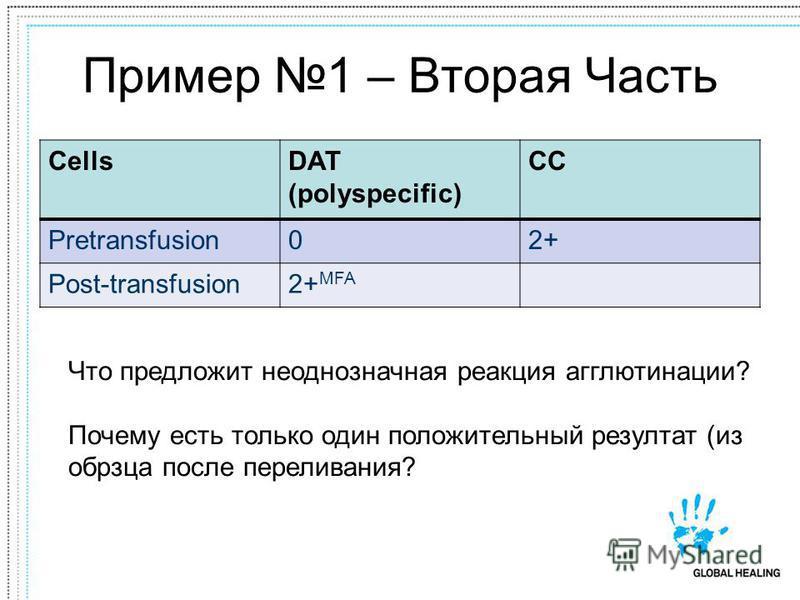 Пример 1 – Вторая Часть CellsDAT (polyspecific) CC Pretransfusion02+ Post-transfusion2+ MFA Что предложит неоднозначная реакция агглютинации? Почему есть только один положительный результат (из образца после переливания?
