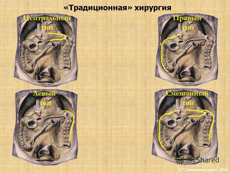 «Традиционная» хирургия Е.Г.Григорьев и соавт., 2014 Левый тип Смешанный тип Правый тип Центральный тип