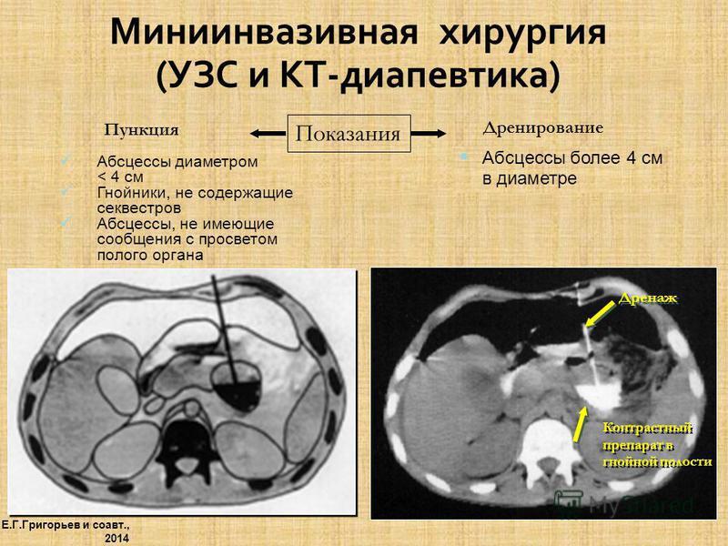 Миниинвазивная хирургия (УЗС и КТ-диапевтика) Пункция Абсцессы диаметром < 4 см Гнойники, не содержащие секвестров Абсцессы, не имеющие сообщения с просветом полого органа Дренирование Абсцессы более 4 см в диаметре Показания Дренаж Контрастный препа