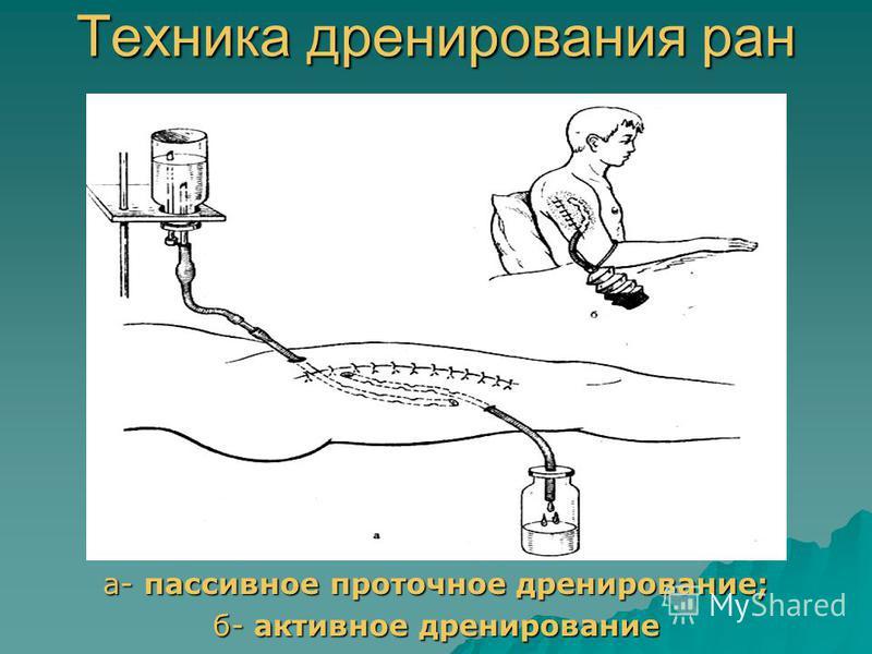 Техника дренирования ран а- пассивное проточное дренирование; б- активное дренирование