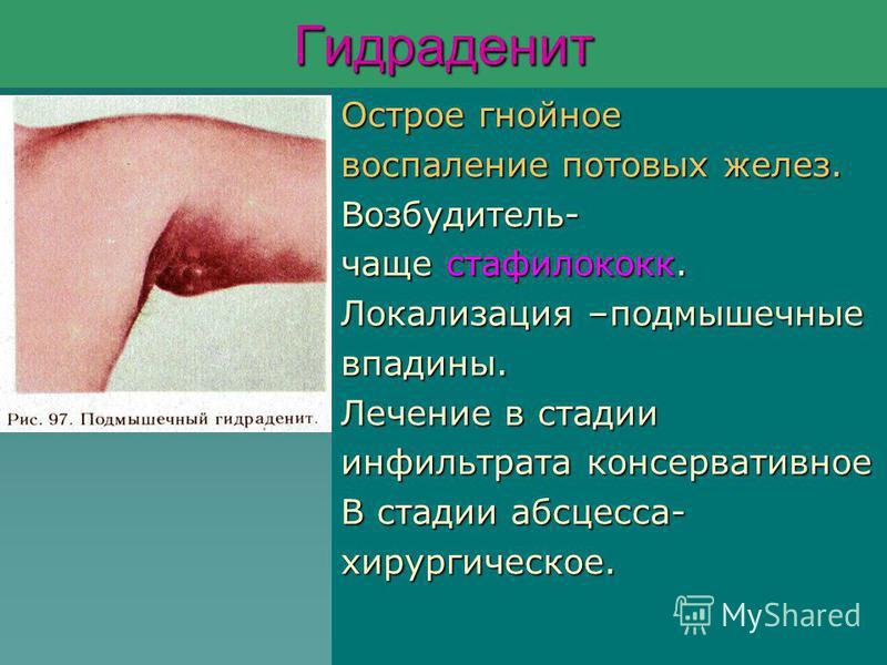 Гидраденит Острое гнойное воспаление потовых желез. Возбудитель- чаще стафилококк. Локализация –подмышечные впадины. Лечение в стадии инфильтрата консервативное В стадии абсцесса- хирургическое.