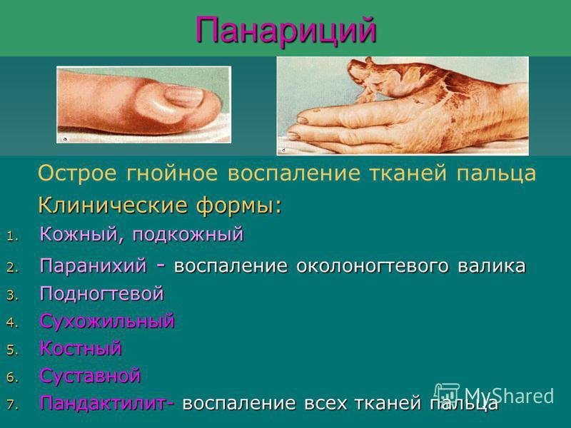 Панариций Острое гнойное воспаление тканей пальца Клинические формы: Клинические формы: 1. Кожный, подкожный 2. Паранихий - воспаление околоногтевого валика 3. Подногтевой 4. Сухожильный 5. Костный 6. Суставной 7. Пандактилит- воспаление всех тканей