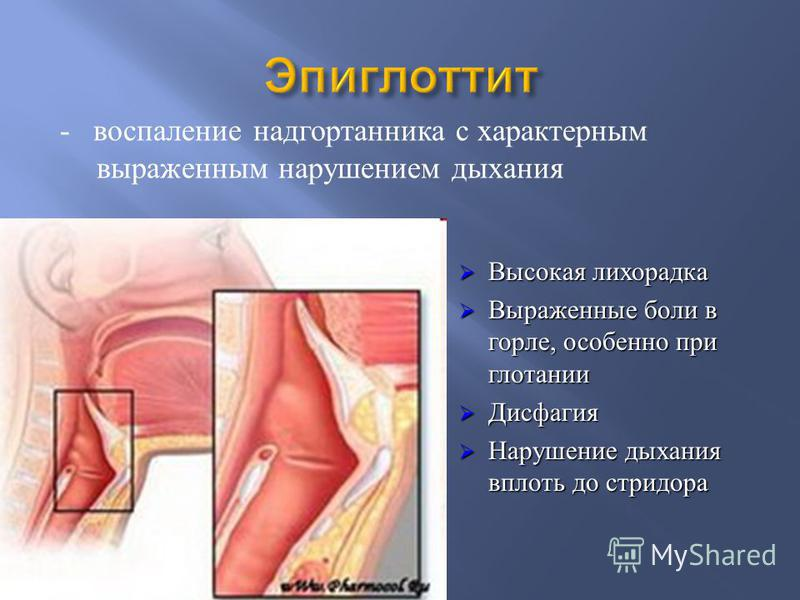 - воспаление надгортанника с характерным выраженным нарушением дыхания Высокая лихорадка Высокая лихорадка Выраженные боли в горле, особенно при глотании Выраженные боли в горле, особенно при глотании Дисфагия Дисфагия Нарушение дыхания вплоть до стр