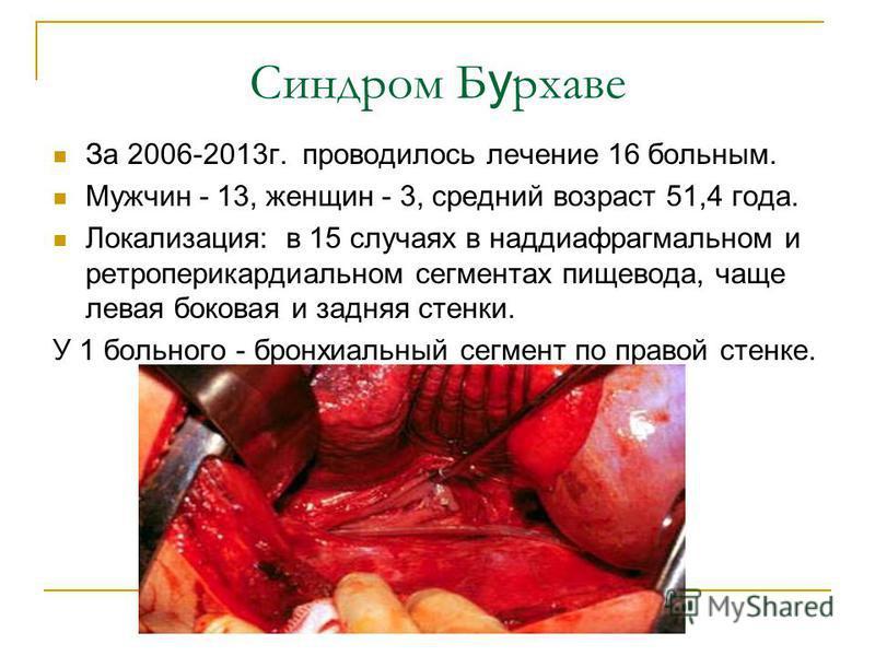 Синдром Б у рхаве За 2006-2013 г. проводилось лечение 16 больным. Мужчин - 13, женщин - 3, средний возраст 51,4 года. Локализация: в 15 случаях в наддиафрагмальном и ретроперикардиальном сегментах пищевода, чаще левая боковая и задняя стенки. У 1 бол
