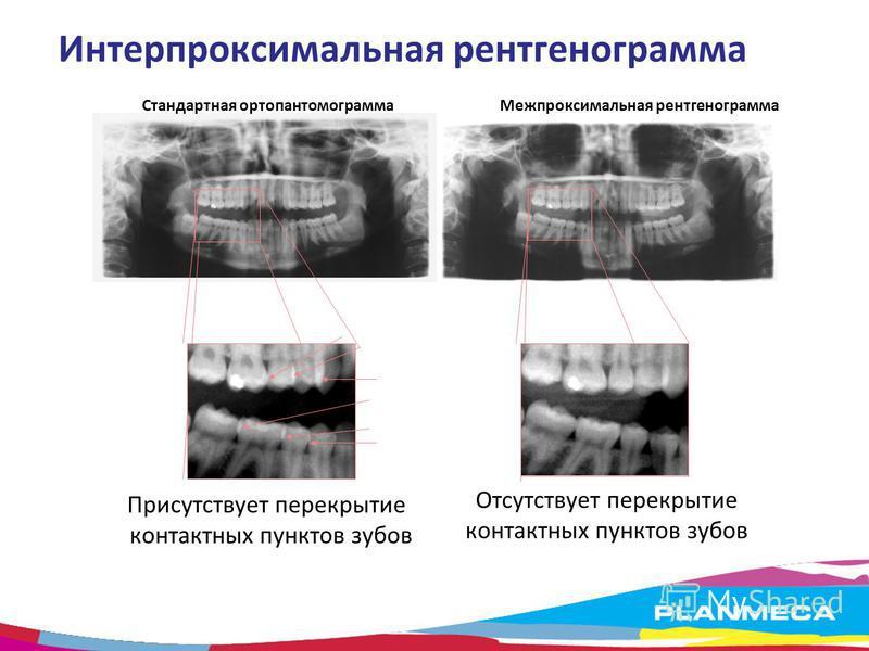 Интерпроксимальная рентгенограмма Стандартная ортопантомограмма Межпроксимальная рентгенограмма Присутствует перекрытие контактных пунктов зубов Отсутствует перекрытие контактных пунктов зубов