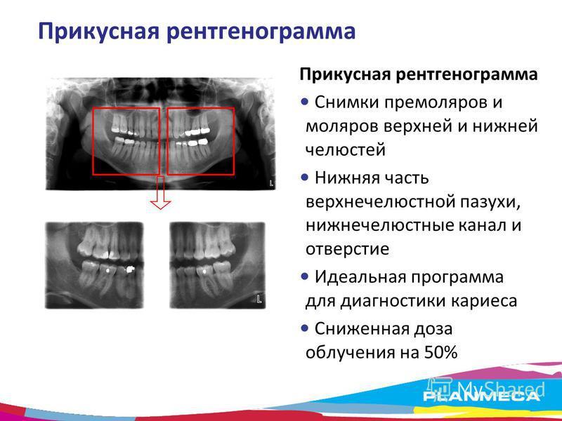 Прикусная рентгенограмма Снимки премоляров и моляров верхней и нижней челюстей Нижняя часть верхнечелюстной пазухи, нижнечелюстные канал и отверстие Идеальная программа для диагностики кариеса Сниженная доза облучения на 50%