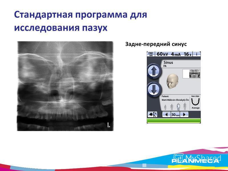 Стандартная программа для исследования пазух Задне-передний синус