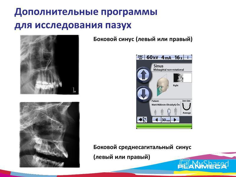 Дополнительные программы для исследования пазух Боковой синус (левый или правый) Боковой средне сагиттальный синус (левый или правый)