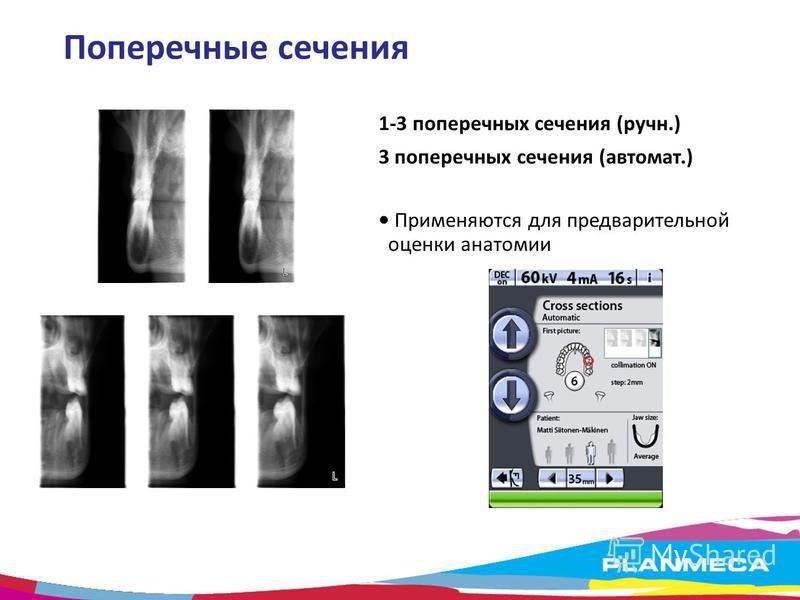 Поперечные сечения 1-3 поперечных сечения (ручн.) 3 поперечных сечения (автомат.) Применяются для предварительной оценки анатомии