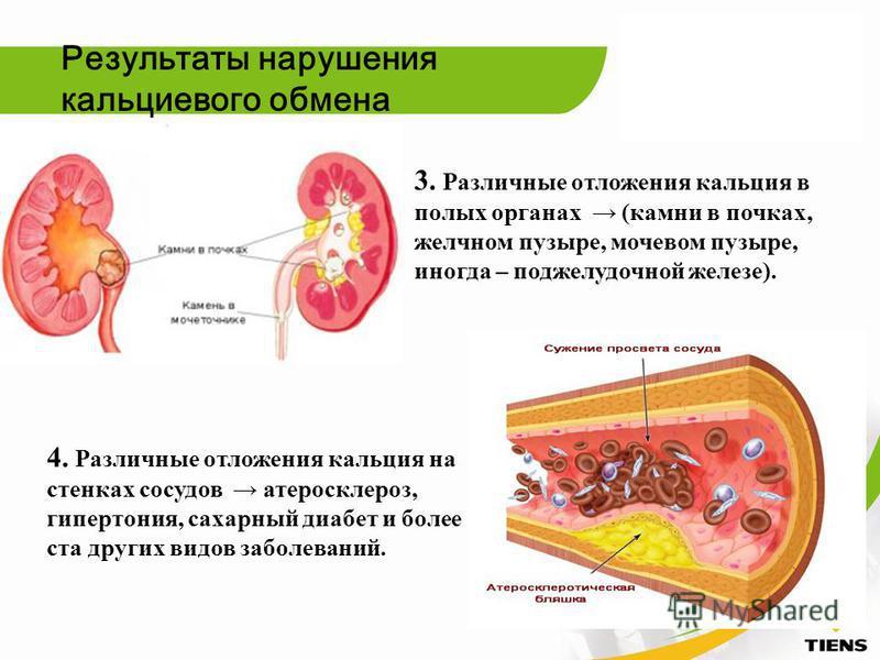 3. Различные отложения кальция в полых органах (камни в почках, желчном пузыре, мочевом пузыре, иногда – поджелудочной железе). 4. Различные отложения кальция на стенках сосудов атеросклероз, гипертония, сахарный диабет и более ста других видов забол