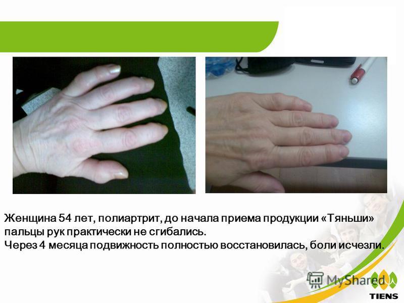 Женщина 54 лет, полиартрит, до начала приема продукции « Тяньши » пальцы рук практически не сгибались. Через 4 месяца подвижность полностью восстановилась, боли исчезли.
