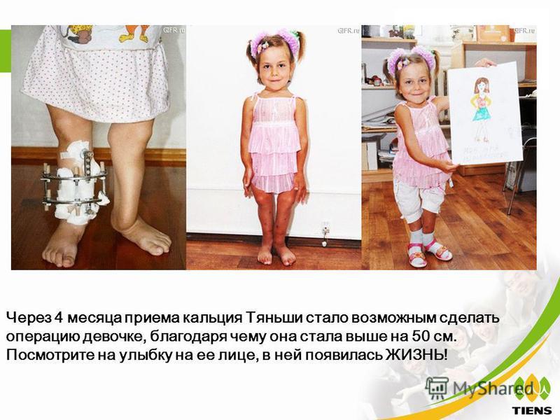 Через 4 месяца приема кальция Тяньши стало возможным сделать операцию девочке, благодаря чему она стала выше на 50 см. Посмотрите на улыбку на ее лице, в ней появилась ЖИЗНЬ!