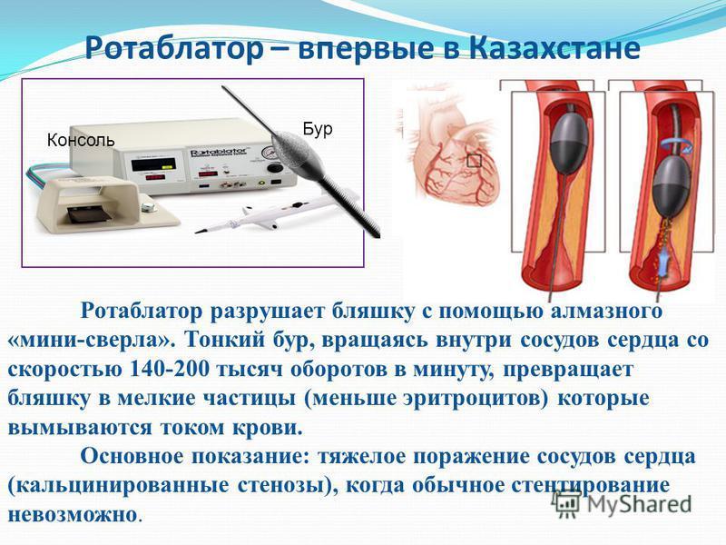 Ротаблатор – впервые в Казахстане Консоль Бур Ротаблатор разрушает бляшку с помощью алмазного «мини-сверла». Тонкий бур, вращаясь внутри сосудов сердца со скоростью 140-200 тысяч оборотов в минуту, превращает бляшку в мелкие частицы (меньше эритроцит