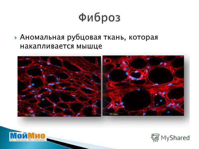Аномальная рубцовая ткань, которая накапливается мышце