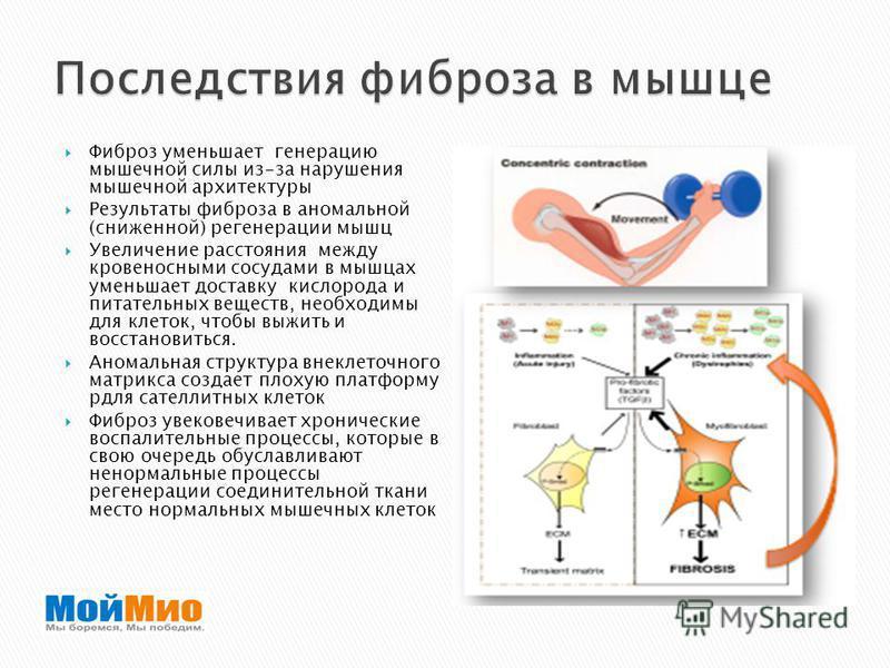 Фиброз уменьшает генерацию мышечной силы из-за нарушения мышечной архитектуры Результаты фиброза в аномальной (сниженной) регенерации мышц Увеличение расстояния между кровеносными сосудами в мышцах уменьшает доставку кислорода и питательных веществ,