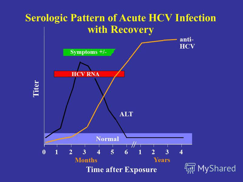 Serologic Pattern of Acute HCV Infection with Recovery Symptoms +/- Time after Exposure Titer anti- HCV ALT Normal 012345 61234 Years Months HCV RNA
