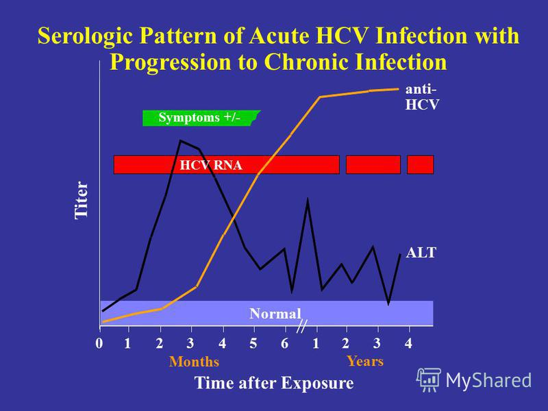 Serologic Pattern of Acute HCV Infection with Progression to Chronic Infection Symptoms +/- Time after Exposure Titer anti- HCV ALT Normal 012345 61234 Years Months HCV RNA