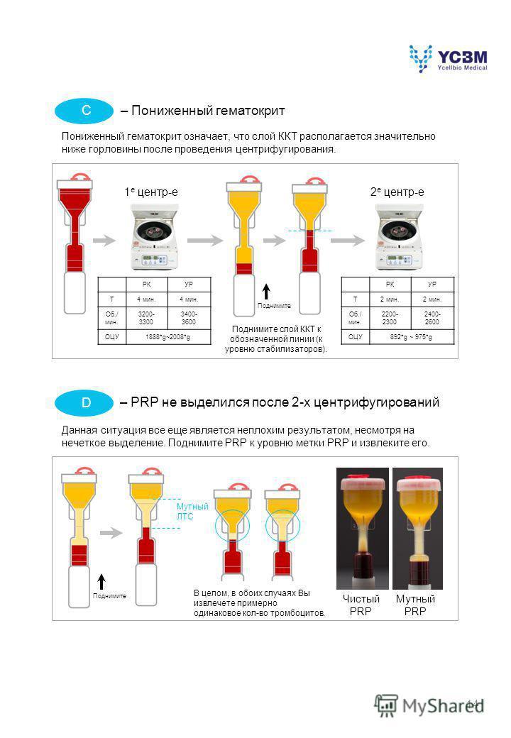 14 – Пониженный гематокрит Пониженный гематокрит означает, что слой ККТ располагается значительно ниже горловины после проведения центрифугирования. Поднимите слой ККТ к обозначенной линии (к уровню стабилизаторов). – PRP не выделился после 2-х центр