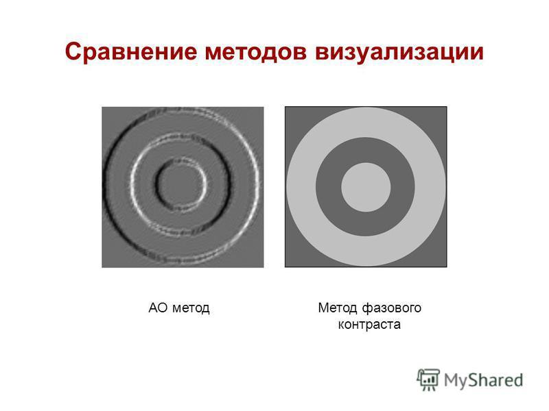 Сравнение методов визуализации АО метод Метод фазового контраста