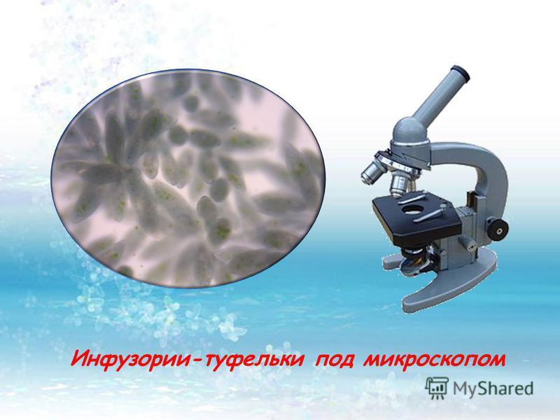 Инфузории-туфельки под микроскопом