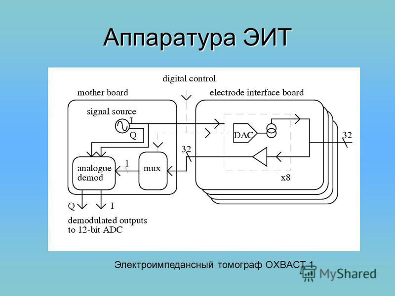Аппаратура ЭИТ Электроимпедансный томограф OXBACT 1