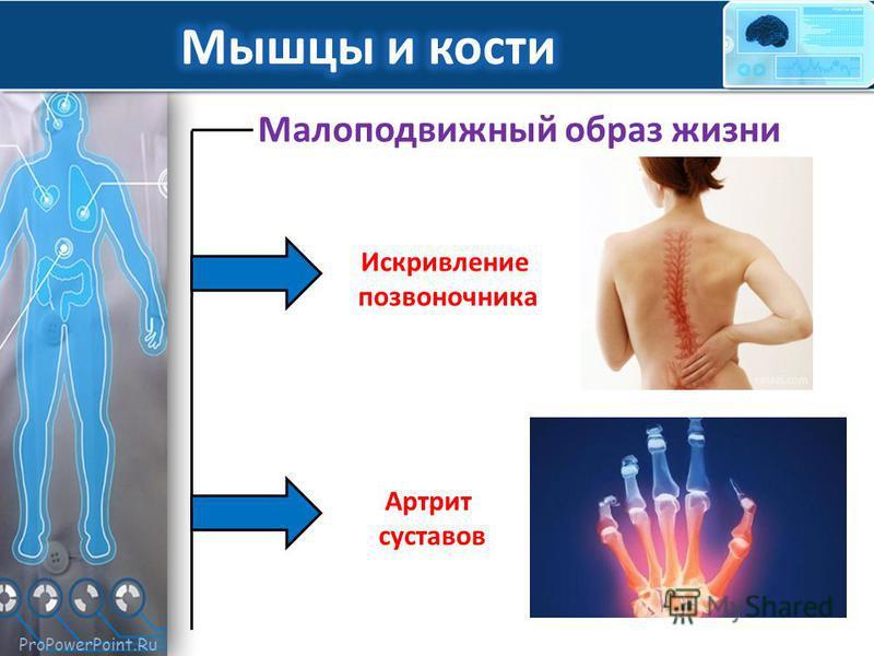 ProPowerPoint.Ru Малоподвижный образ жизни Искривление позвоночника Артрит суставов