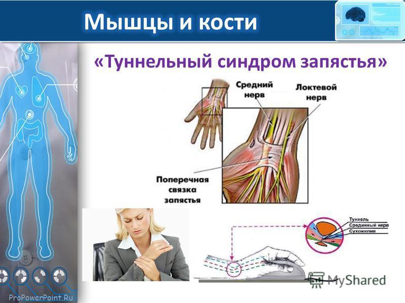 ProPowerPoint.Ru «Туннельный синдром запястья»