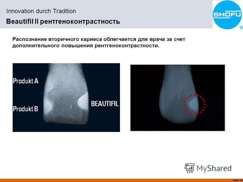 Seite 19 Innovation durch Tradition Beautifil II рентгеноконтрастность Распознание вторичного кариеса облегчается для врача за счет дополнительного повышения рентгено контрастности.