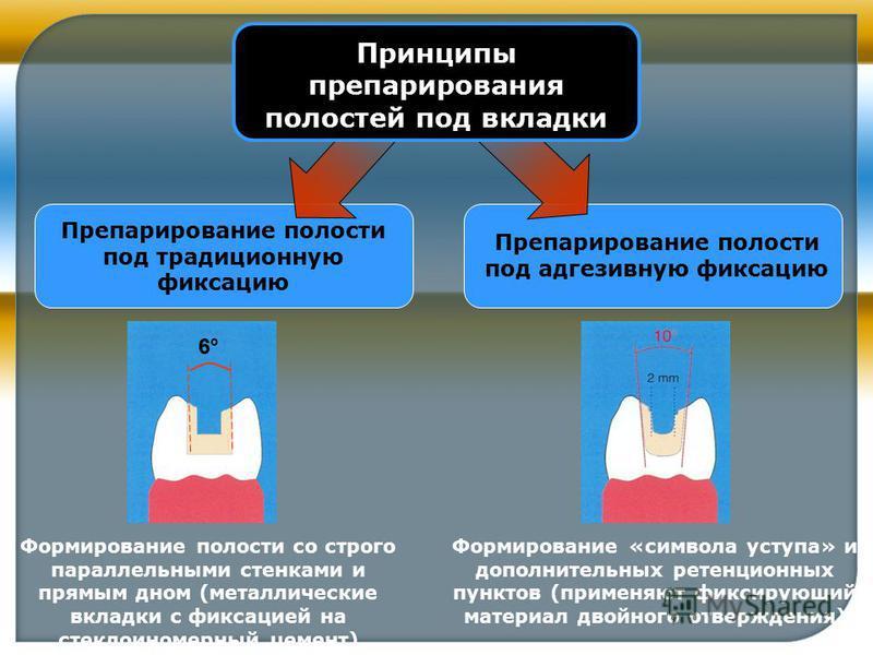 Препарирование полости под традиционную фиксацию Препарирование полости под адгезивную фиксацию Принципы препарирования полостей под вкладки 6°6° Формирование полости со строго параллельными стенками и прямым дном (металлические вкладки с фиксацией н