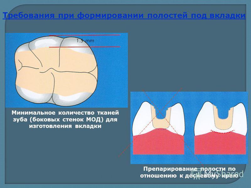 Минимальное количество тканей зуба (боковых стенок МОД) для изготовления вкладки Препарирование полости по отношению к десневому краю Требования при формировании полостей под вкладки