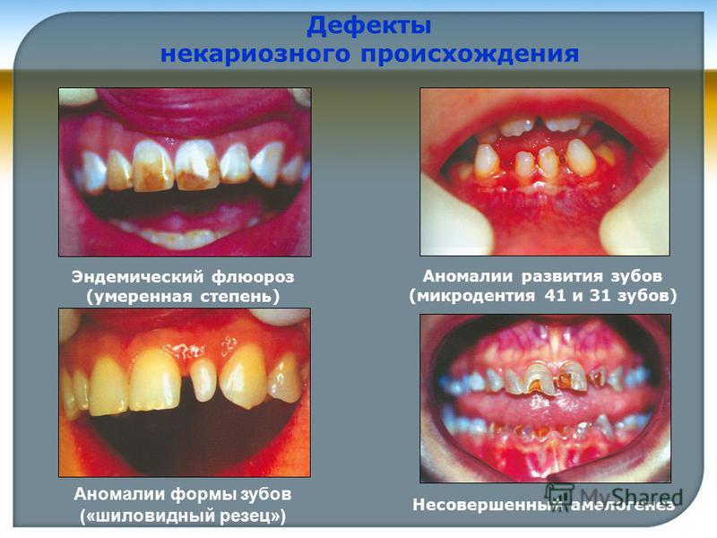 Эндемический флюороз (умеренная степень) Аномалии развития зубов (микродентия 41 и 31 зубов) Дефекты некариозного происхождения Аномалии формы зубов («шиловидный резец») Несовершенный амелогенез