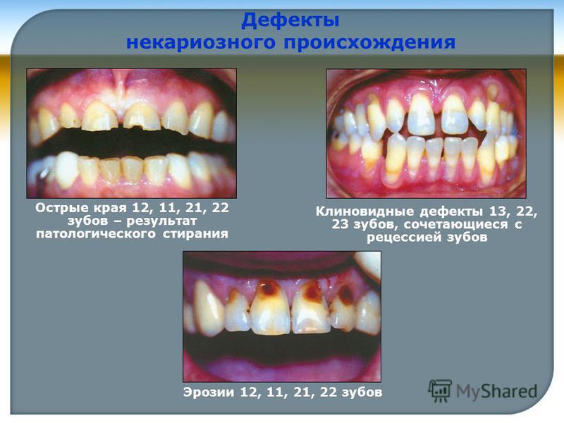 Острые края 12, 11, 21, 22 зубов – результат патологического стирания Клиновидные дефекты 13, 22, 23 зубов, сочетающиеся с рецессией зубов Дефекты некариозного происхождения Эрозии 12, 11, 21, 22 зубов