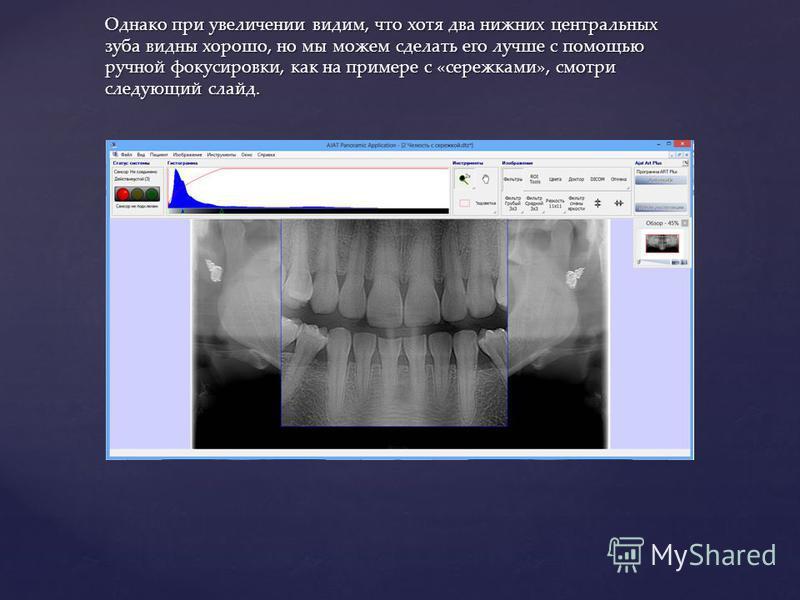 Однако при увеличении видим, что хотя два нижних центральных зуба видны хорошо, но мы можем сделать его лучше с помощью ручной фокусировки, как на примере с «сережками», смотри следующий слайд.