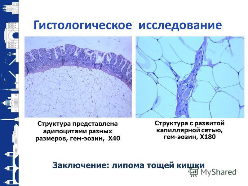 Гистологическое исследование Структура представлена адипоцитами разных размеров, гем-эозин, X40 Заключение: липома тощей кишки Структура с развитой капиллярной сетью, гем-эозин, X180