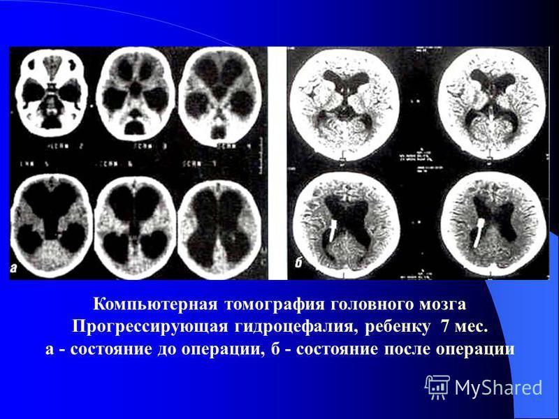 Компьютерная томография головного мозга Прогрессирующая гидроцефалия, ребенку 7 мес. а - состояние до операции, б - состояние после операции