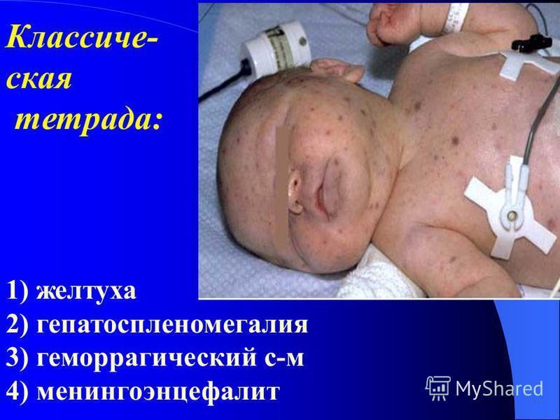 Классиче- ская тетрада: 1) желтуха 2) гепатоспленомегалия 3) геморрагический с-м 4) менингоэнцефалит