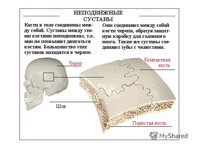 доктор по болезни остеоартроза сустава