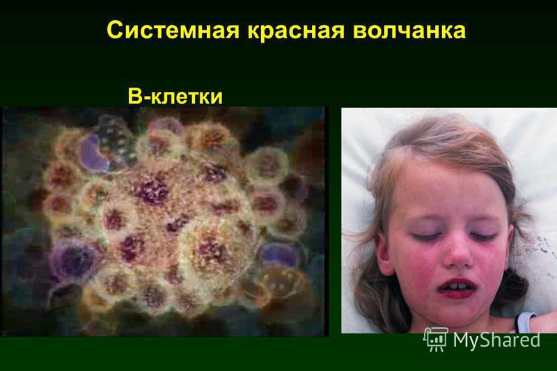 В-клетки В-клетки Системная красная волчанка