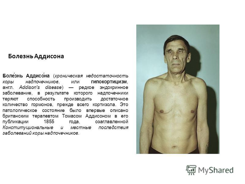 Болезнь Аддисона Боле́знь Аддисо́на (хроническая недостаточность коры надпочечников, или гипокортицизм, англ. Addison's disease) редкое эндокринное заболевание, в результате которого надпочечники теряют способность производить достаточное количество